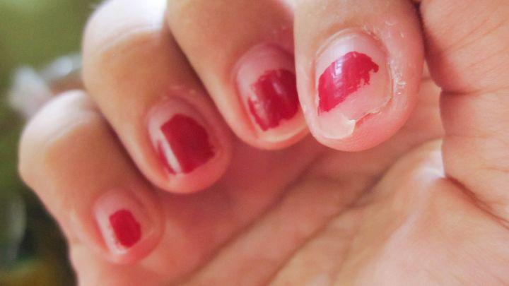 трещины под ногтем