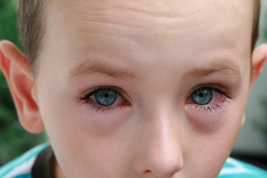 Ребенок застудил глаза