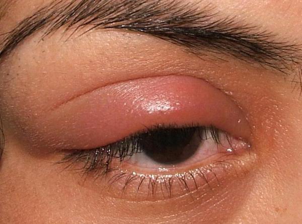 От чего бывает ячмень под глазом