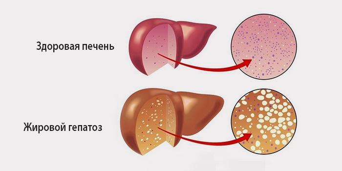 Что такое жировой гепатоз