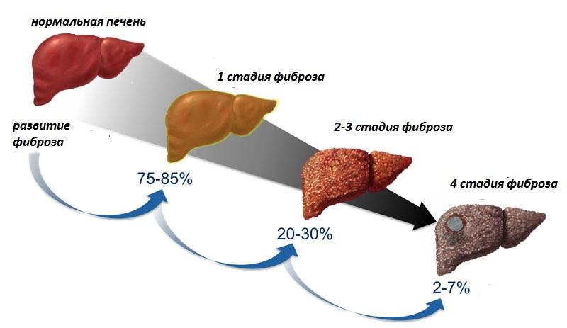 жировой гепатоз печени: последствия