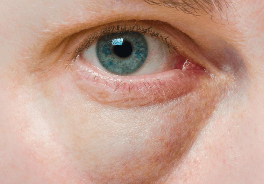 красные отеки под глазами у ребенка