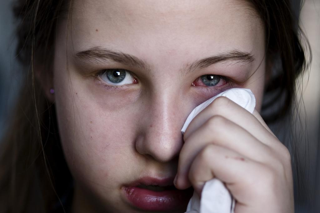 конъюнктивит вызывает боль в глазах