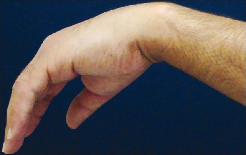 защемление лучевого нерва в руке причины