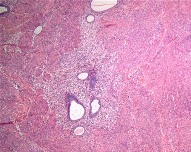 Патологические изменения эндометрия