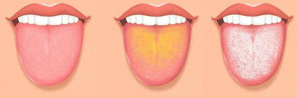 Виды налета на языке