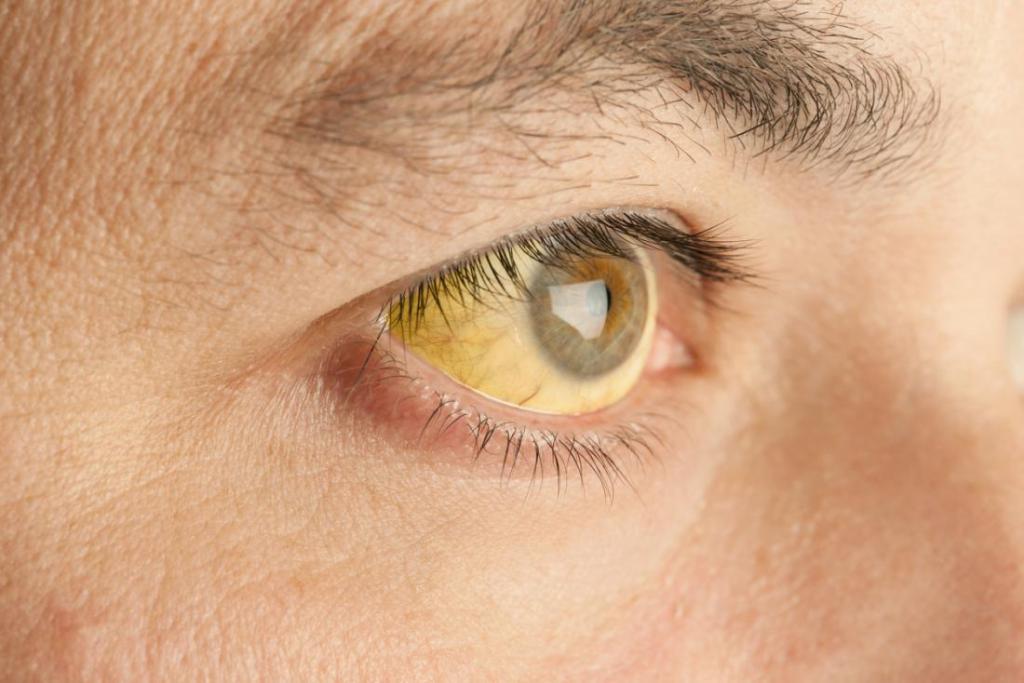 Желтушность кожных покровов и склер глаз