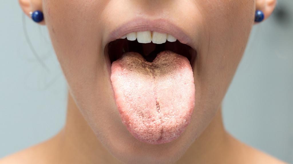 Желтый налет на языке причины и лечение