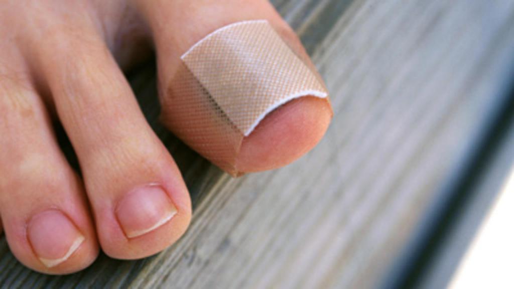 Замотанный палец на ноге