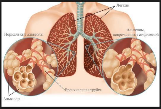 энфизема легких