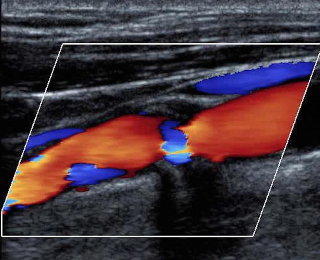 Допплерография дуплексное сканирование сосудов