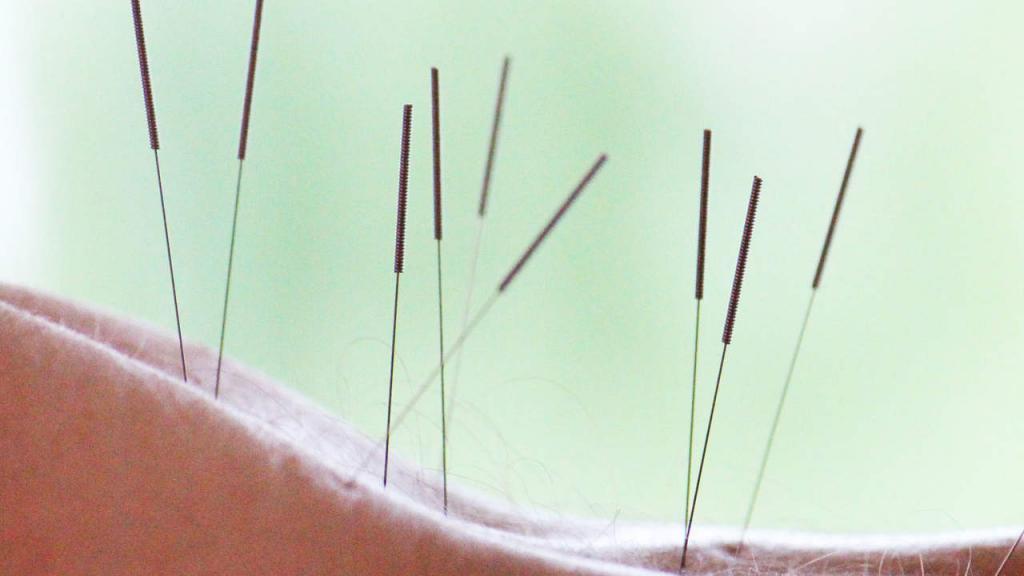постинъекционная невропатия седалищного нерва