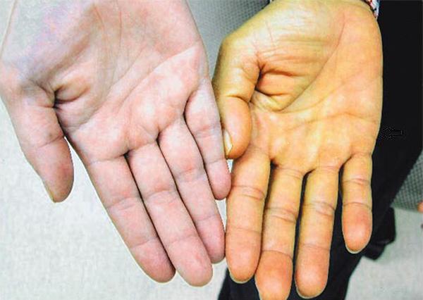Повышен билирубин у взрослых