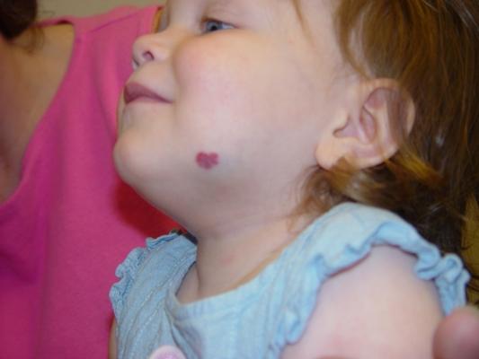 Гемангиома на лице у ребенка