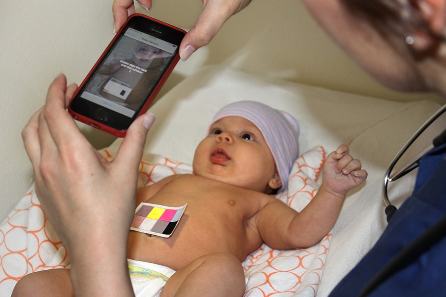 Как обнаружить желтушку у новорожденного