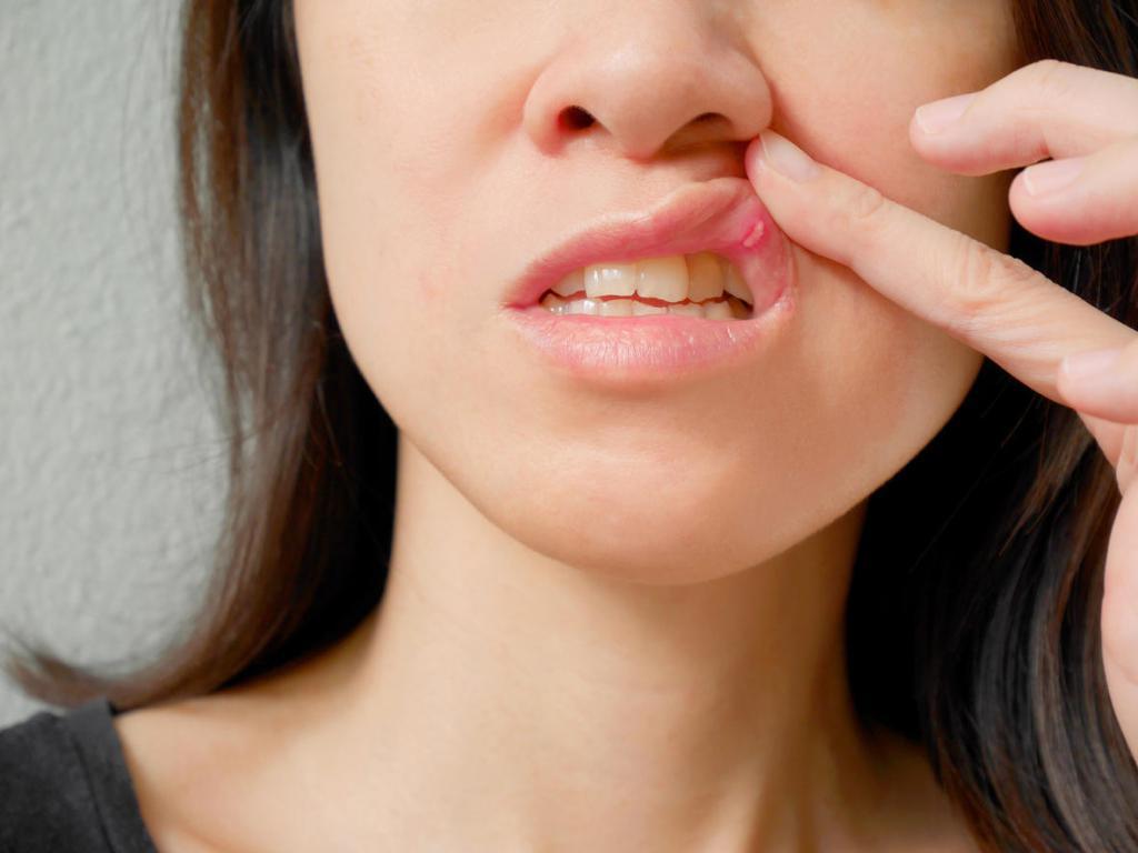 Стоматит на губе