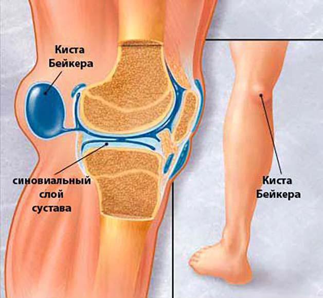 почему болят ноги сзади на сгибе thumbnail