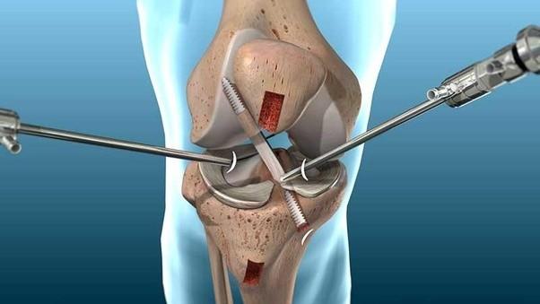 болит левая нога сзади колена