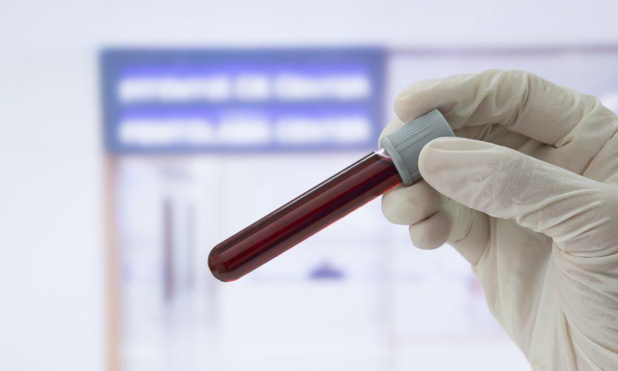 биохимический анализ крови базовый что входит