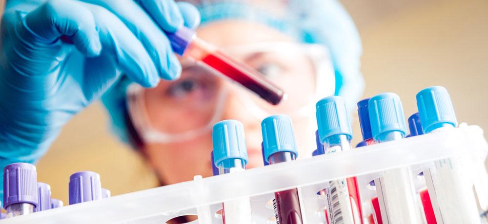Анализ крови ЦИК, расшифровка
