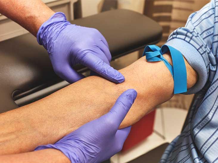 Анализ крови на описторхоз ЦИК