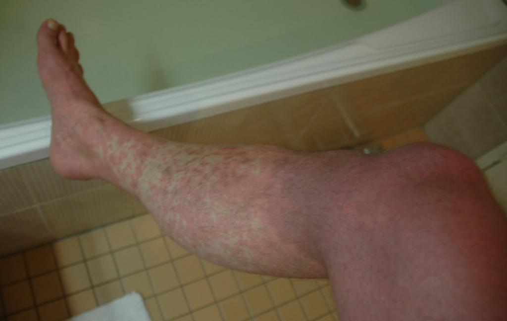 ноги больного человека