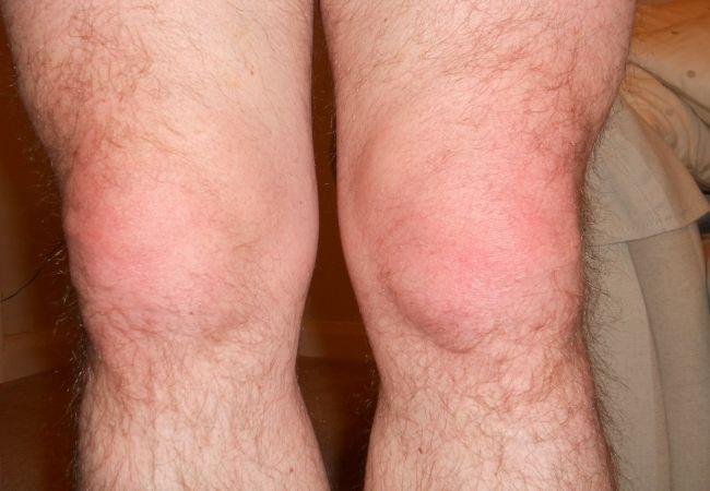 бурсит в колене