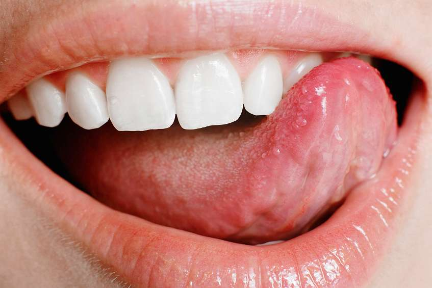 ранки во рту причины лечение