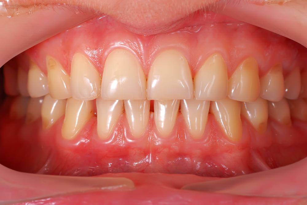 белые пятна на зубах у десен