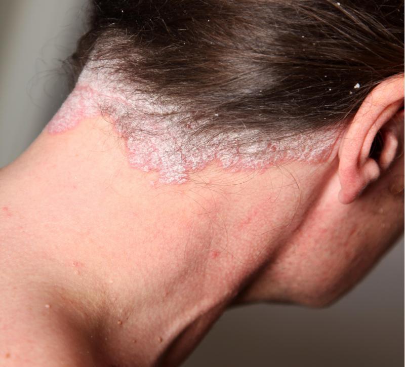 аллергия на голове у ребенка