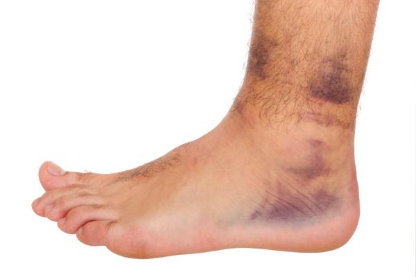 Сильный ушиб мышц ноги thumbnail