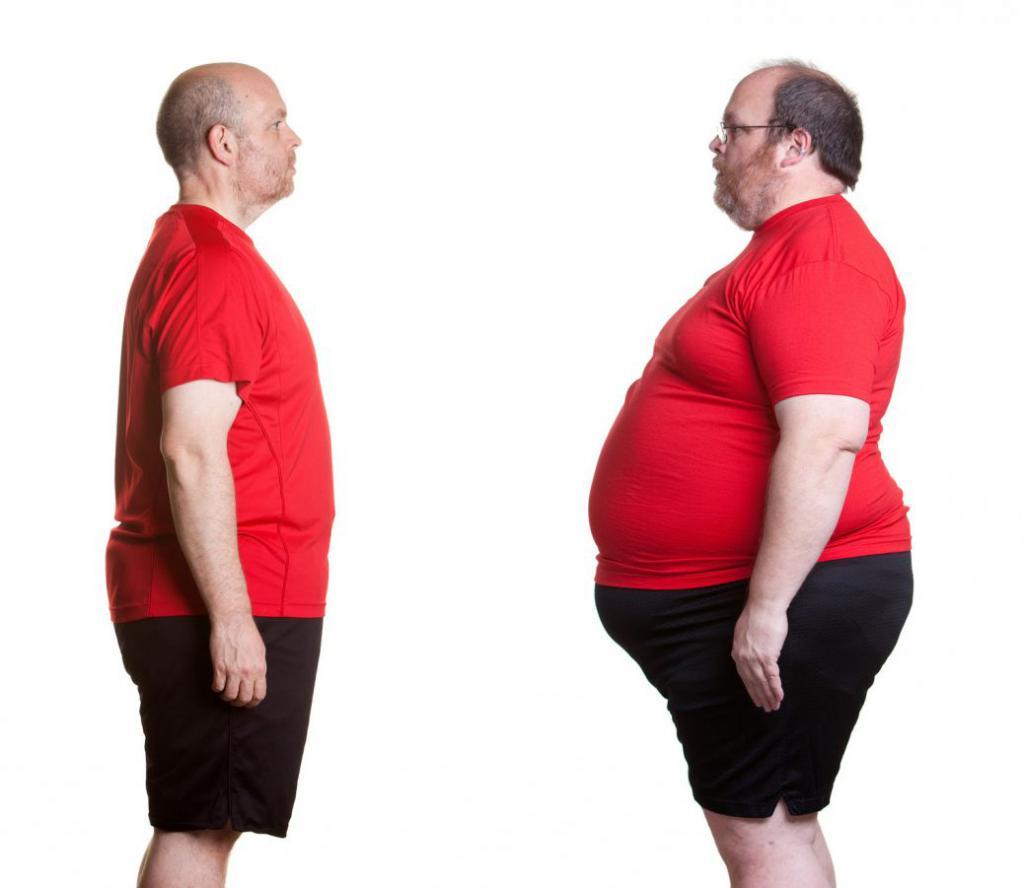ожирение и гепатоз печени