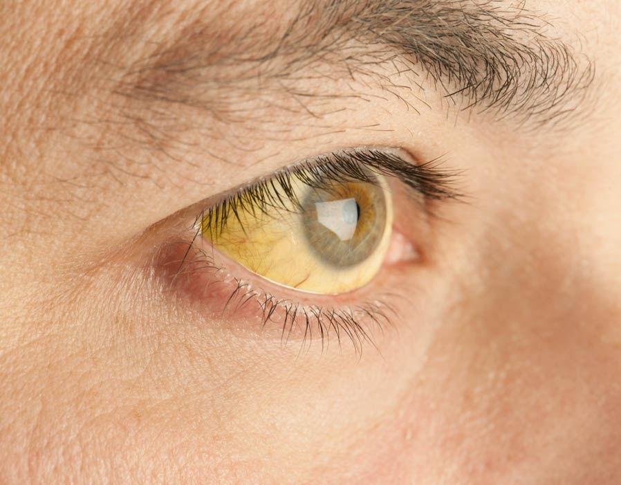 гепатоз. желтая склера глаз