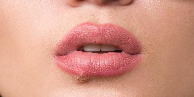 Симптомы папилломавируса
