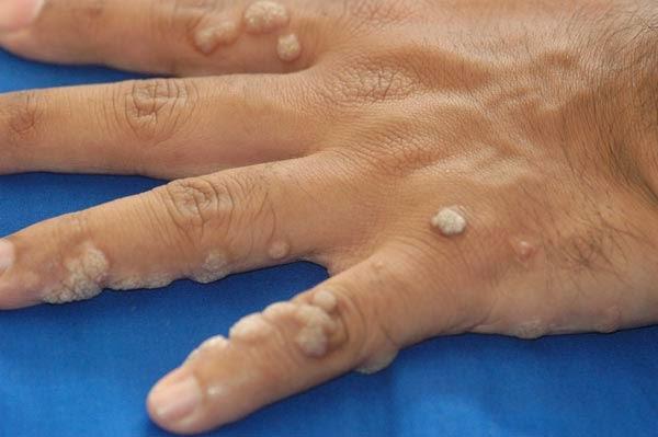 Проявление папилломавируса