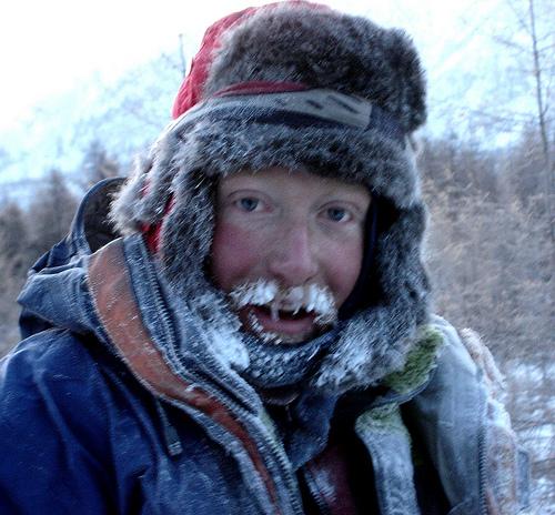 Мороз опасен для губ