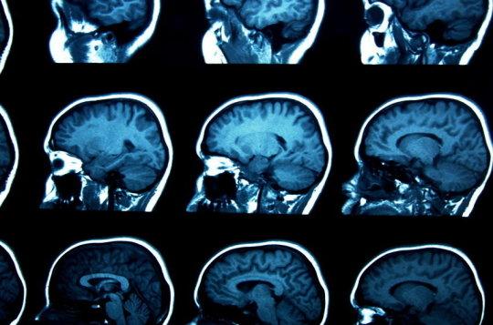 Какие травы пить при энцефалопатии головного мозга