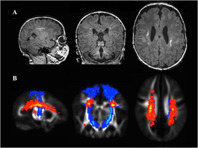 Опухоль головного мозга симптомы на ранних стадиях