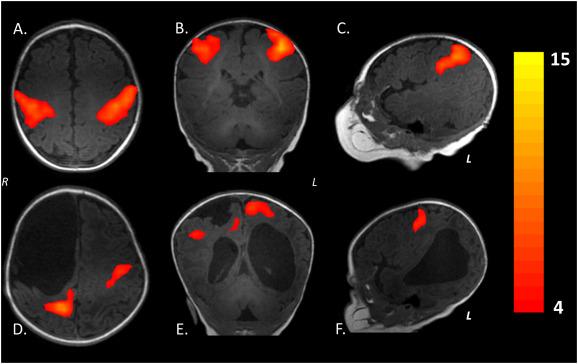 МРТ очаговых поражений