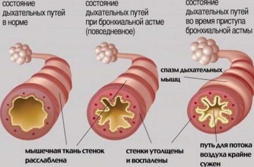 Воспаление и сужение дыхательного прохода при астме