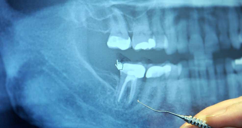 Сколько может болеть депульпированный зуб thumbnail