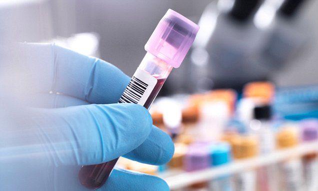 нормальные показатели общего анализа крови у мужчин