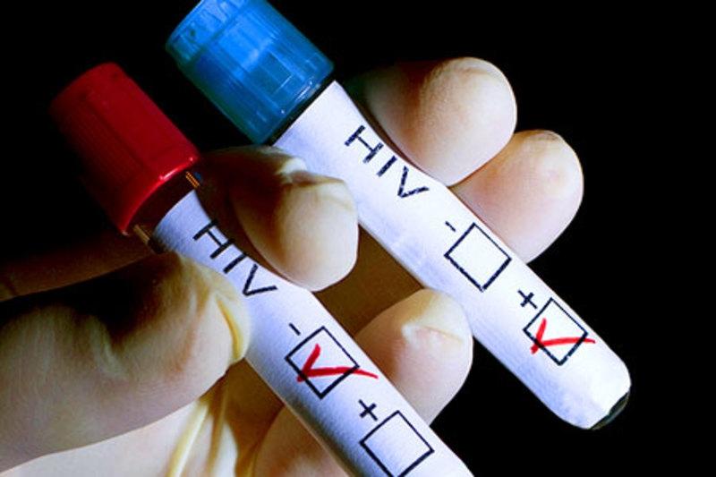 Анализ на ВИЧ