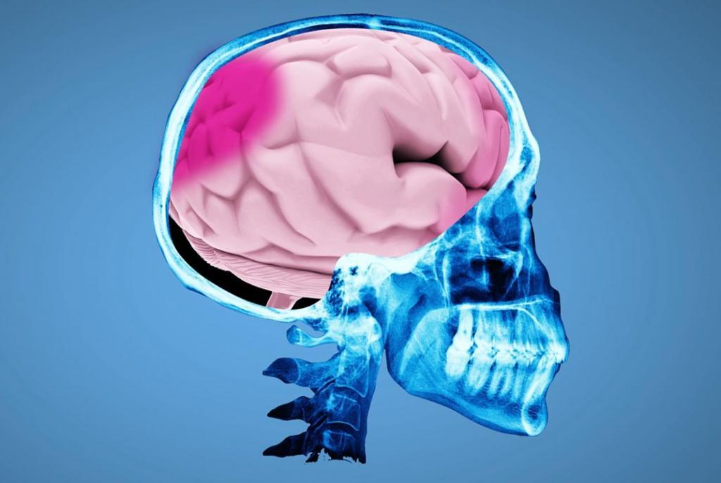 сотрясение головного мозга симптомы у ребенка