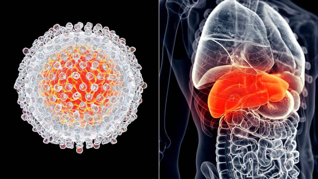 симптомы рака печени у мужчин на ранней