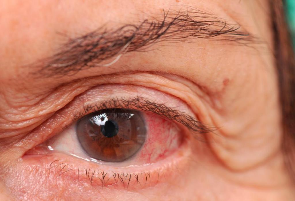 болезнь глаукома симптомы