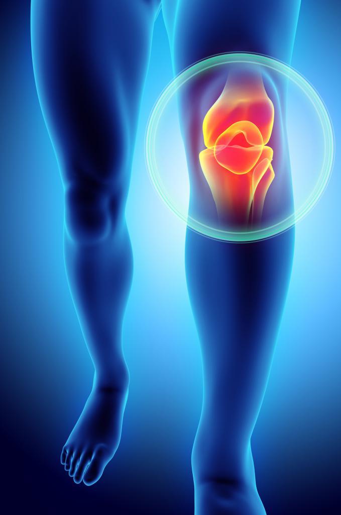 щелкает колено при разгибании