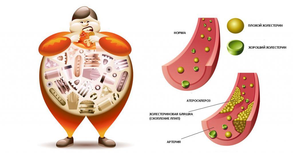 холестерин общий повышен у женщин