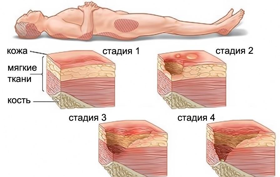 стадии некроза