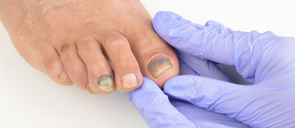 Болит ноготь на большом пальце ноги гной thumbnail